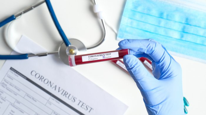 1,628 new coronavirus cases registered in Hungary